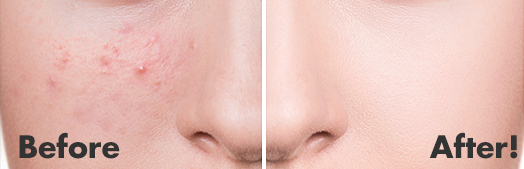 DermaSuction™ Before and After 1