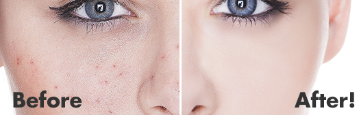 DermaSuction™ Before and After 2